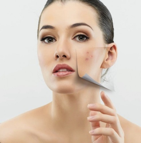 How-to-Get-Rid-of-Scars