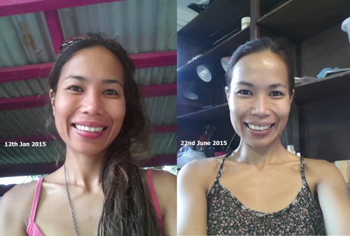 the summit 5mos with The Summit Natural SKin Care